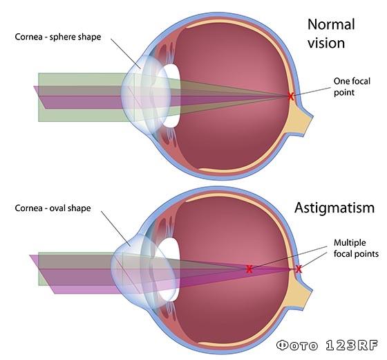 Больно ли делать лазерную коррекция зрения